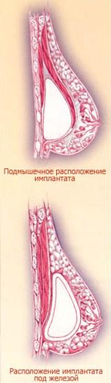 Подмышечное расположение имплантанта